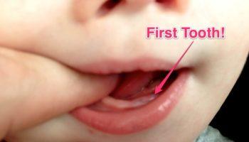 pertumbuhan_gigi_anak