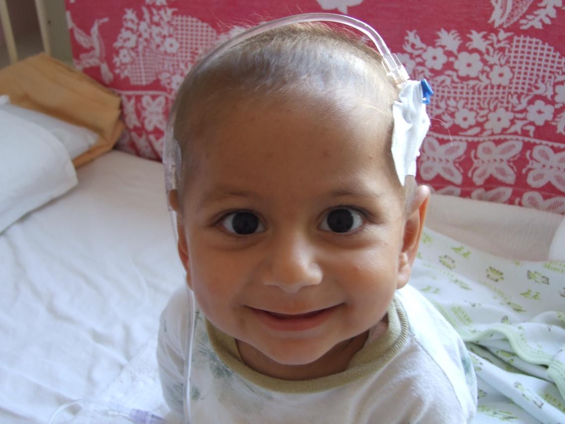 leukemia_pada_anak