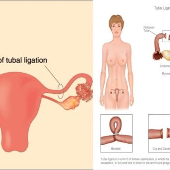 tubektomi